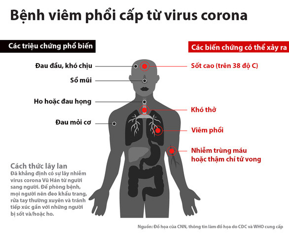Bệnh viêm phổi cấp do Virus Corona mới (nCoV)